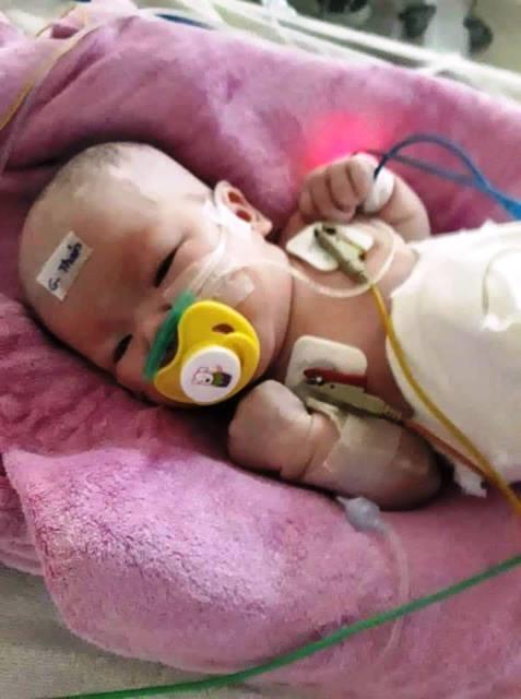 Cháu bé con vợ chồng anh Tiến đang điều trị ở Bệnh viện Phụ sản - nhi Đà Nẵng. Ảnh: P.P