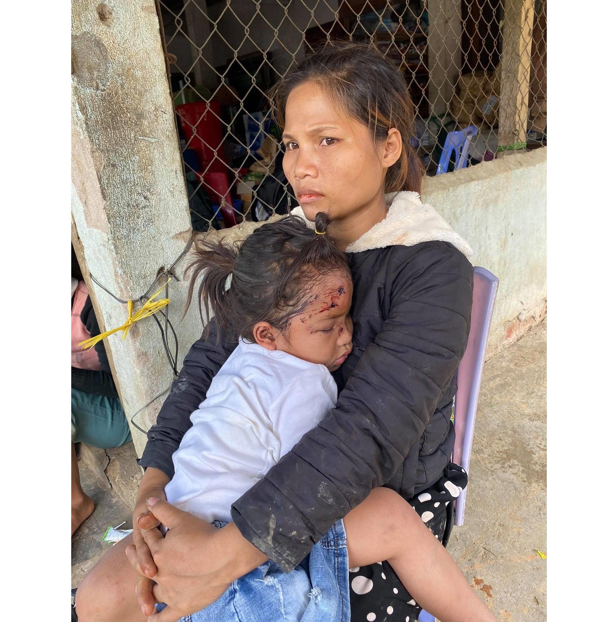 Chị Hồ Thị Hà bồng bế con gái 5 tuổi còn đầy thương tích trên khuôn mặt