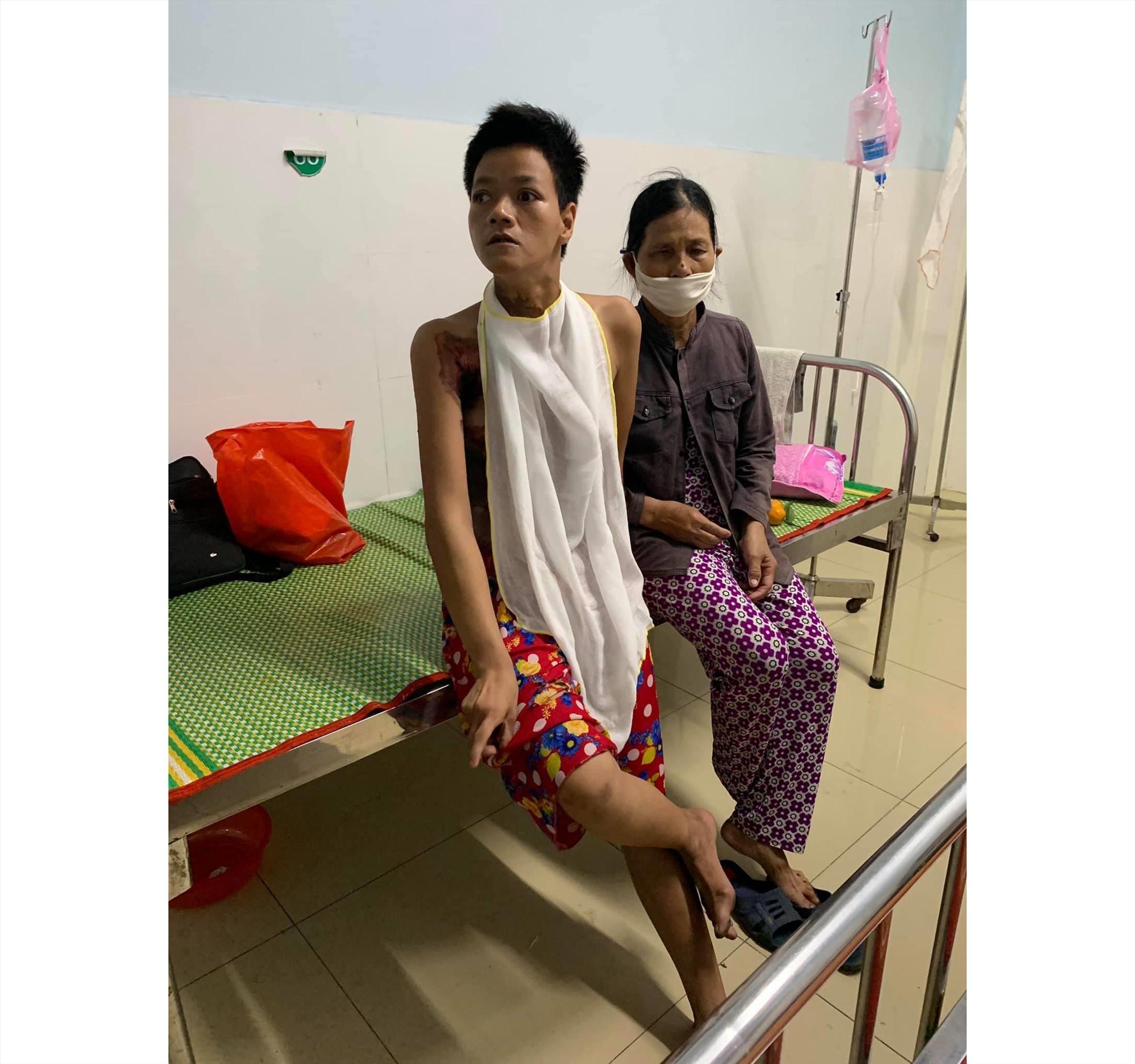 Chị Thanh bị bỏng nặng đang điều trị tại Bệnh viện Đà Nẵng. Ảnh: B.N