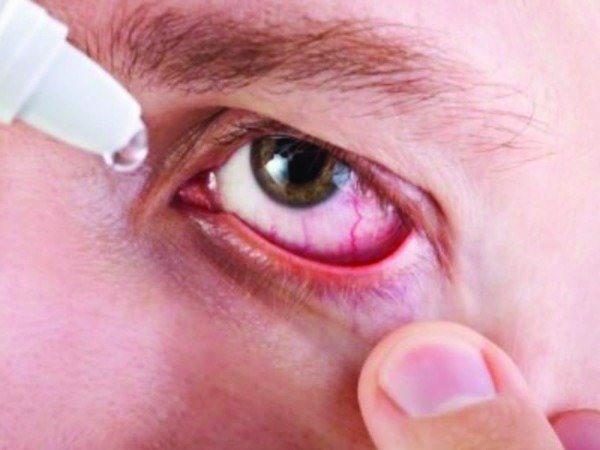 Nếu chẳng may bị nước bẩn bắn vào mắt cần dùng nước muối sinh lý tra rửa nhiều lần để rửa trôi và làm loãng tác nhân gây bệnh.