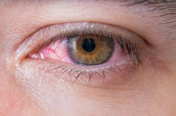 Đau mắt đỏ là căn bệnh dễ mắc sau mưa lũ.