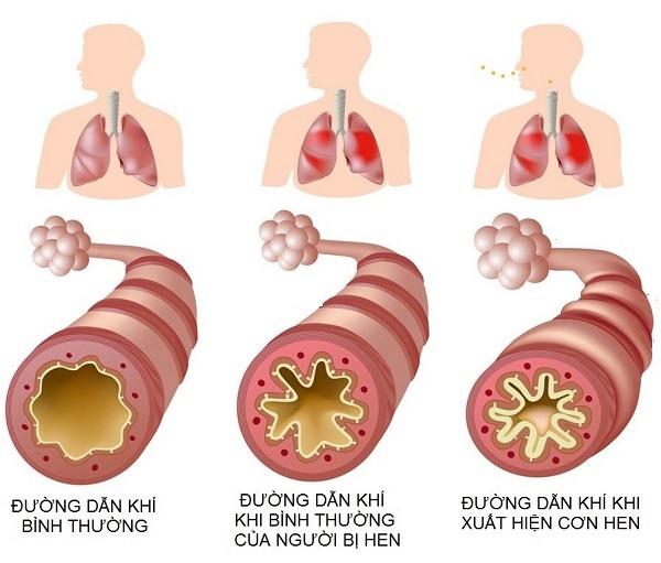 Hen là một bệnh viêm mạn tính của đường hô hấp.