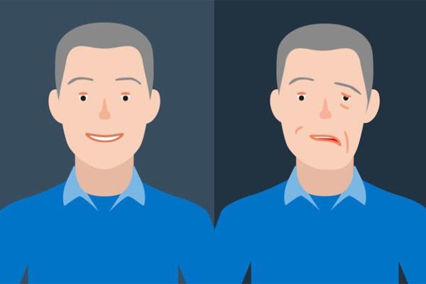 Nụ cười của người khỏe mạnh (trái) và người có nguy cơ bị đột quỵ