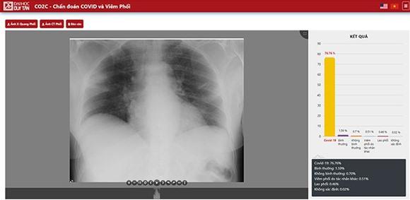 Hình ảnh thu được dự đoán bệnh nhân có nhiễm bệnh hay không và tác nhân cụ thể. Ảnh XL