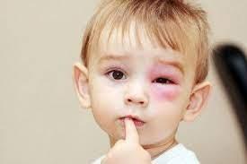 Bệnh Chagas ở trẻ. Ảnh minh họa