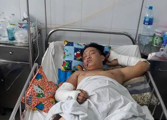 Phước đang được điều trị tại Khoa ngoại Chấn thương chỉnh hình Bệnh viện Đà Nẵng. Ảnh: Đ.Q