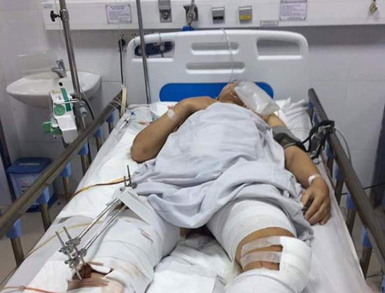 Sinh viên Nguyễn Văn Quốc đang điều trị tại Khoa Ngoại - Hồi sức gây mê, Bệnh viện Đà Nẵng. Ảnh: T.N