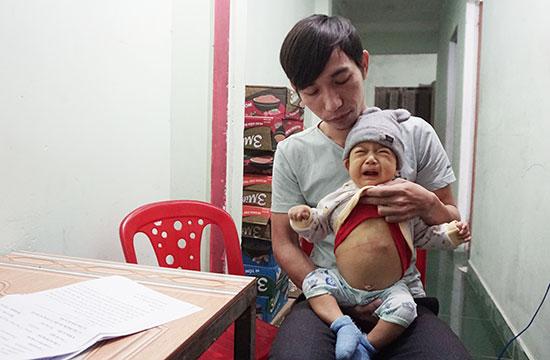 Ước mơ của thầy giáo nghèo mong có tiền chữa bệnh cho con trai mắc bệnh teo đường mật bẩm sinh. Ảnh: N.T